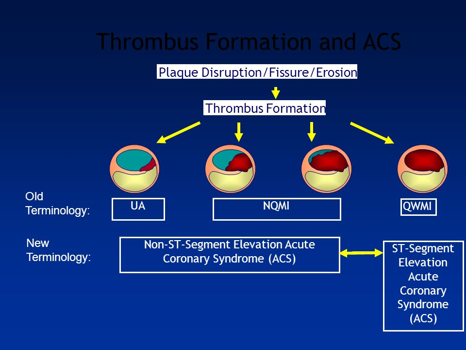 Thrombus Formation and ACS