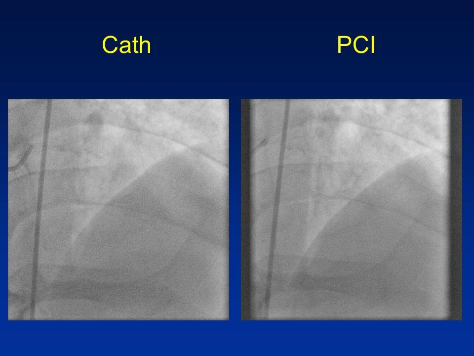 Cath PCI