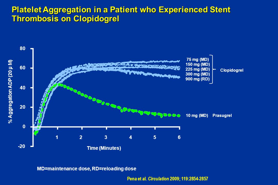 Platelet Aggregation in a Patient who Experienced Stent Thrombosis on Clopidogrel