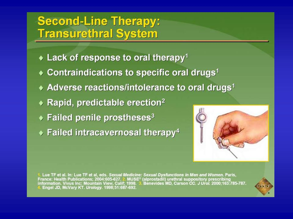An alternative to injection therapy is transurethral application of alprostadil with or without a penile constriction device.1,2 Like injection therapy, transurethral alprostadil is appropriate for those who fail to respond to oral therapy and for those who have adverse reactions to specific oral drugs or in whom oral drugs are contraindicated.1 It is also another option for men in whom a penile prosthesis has failed3 and for those who have failed injection therapy.4