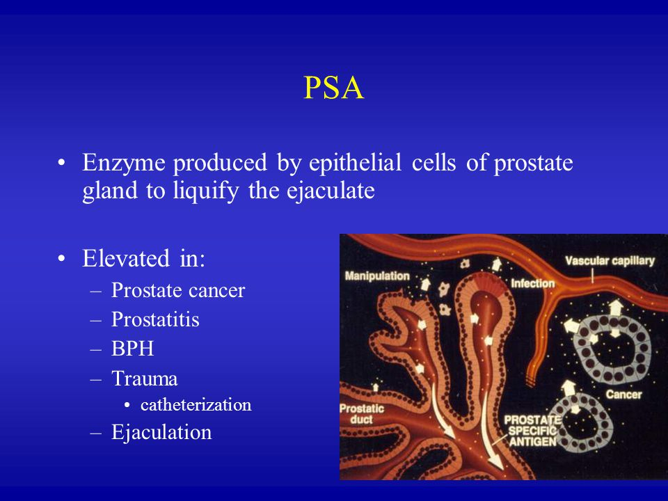 PSA Enzyme produced by epithelial cells of prostate gland to liquify the ejaculate. Elevated in: Prostate cancer.