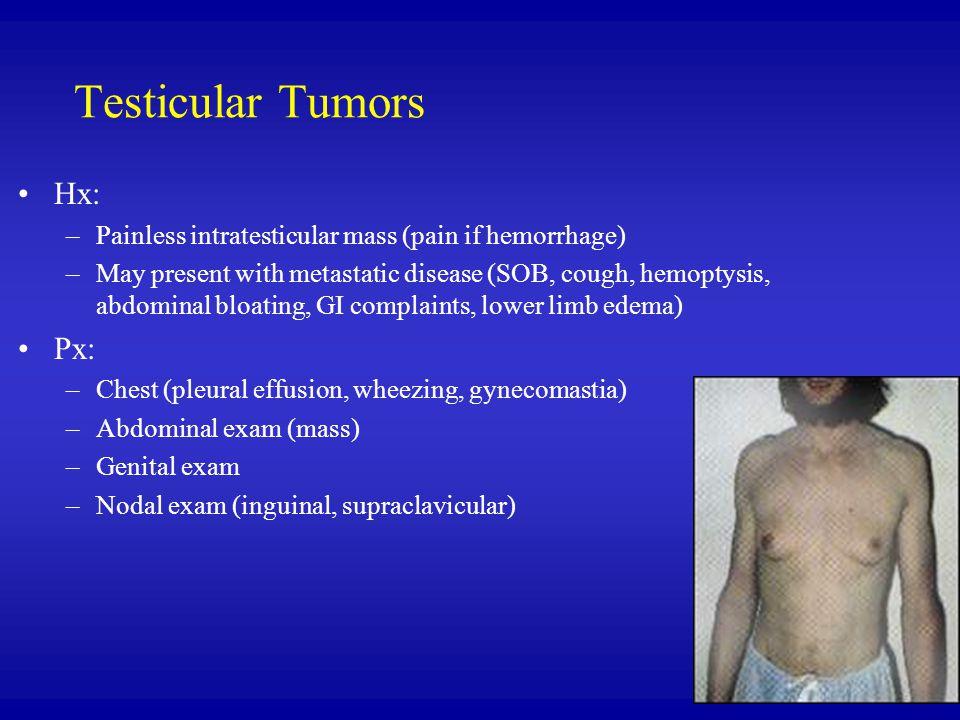 Testicular Tumors Hx: Px:
