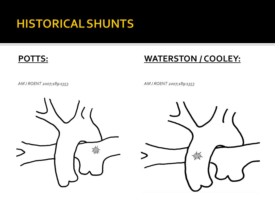 HISTORICAL SHUNTS POTTS: Waterston / Cooley: AM J ROEnT 2007;189:1353