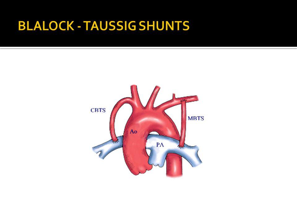 BLALOCK - TAUSSIG SHUNTS