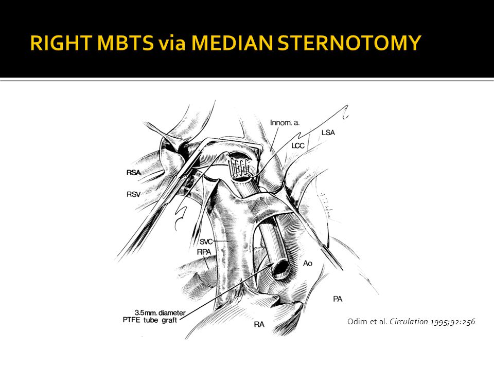 RIGHT MBTS via MEDIAN STERNOTOMY