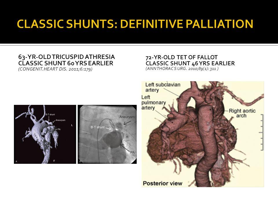 CLASSIC SHUNTS: DEFINITIVE PALLIATION