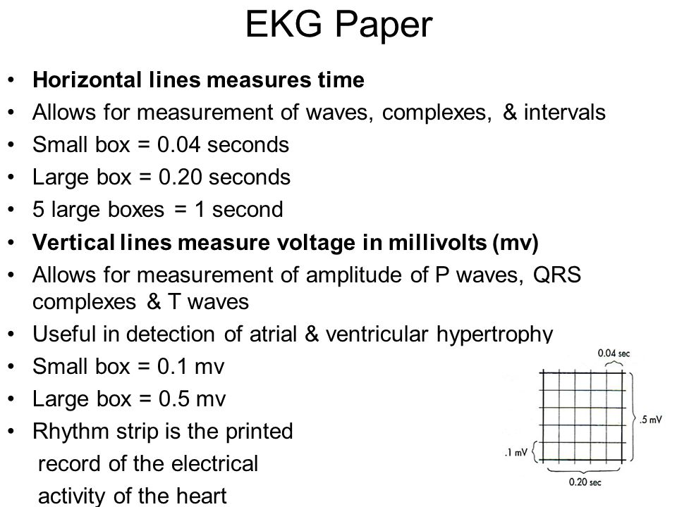 EKG Paper Horizontal lines measures time