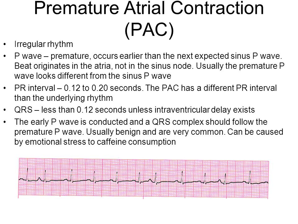 Premature Atrial Contraction (PAC)