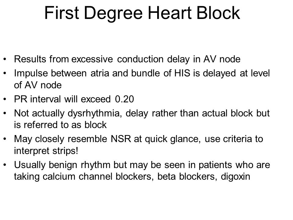 First Degree Heart Block