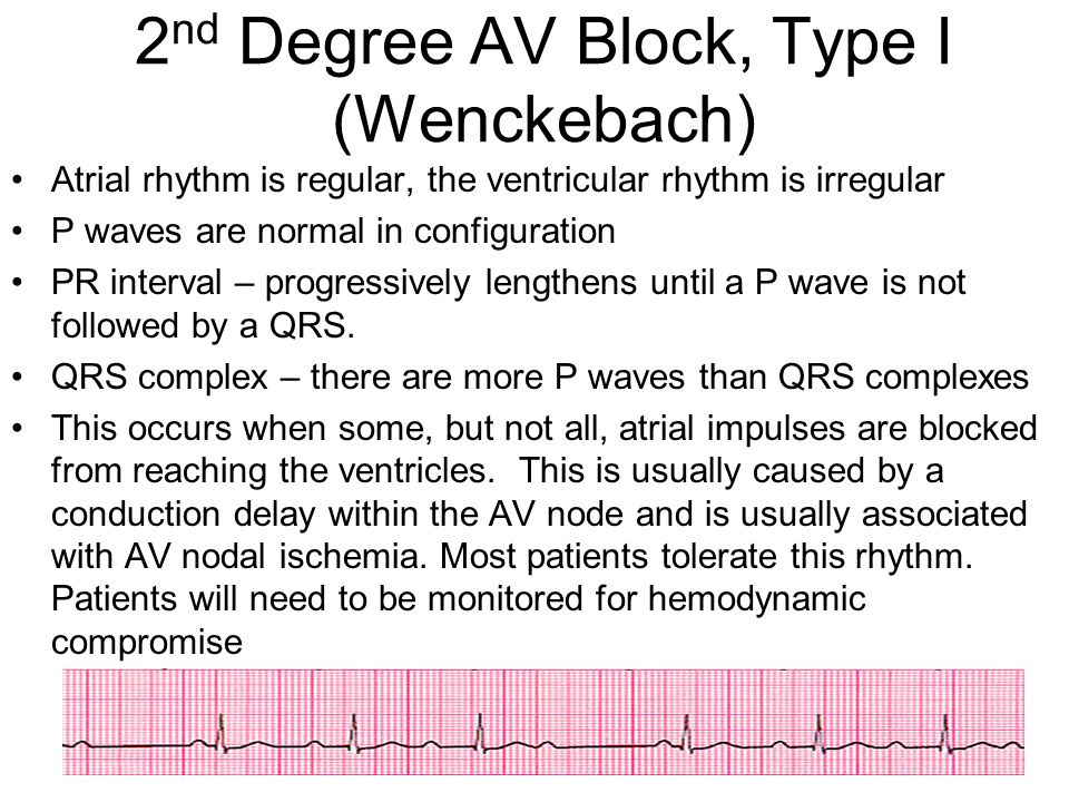 2nd Degree AV Block, Type I (Wenckebach)