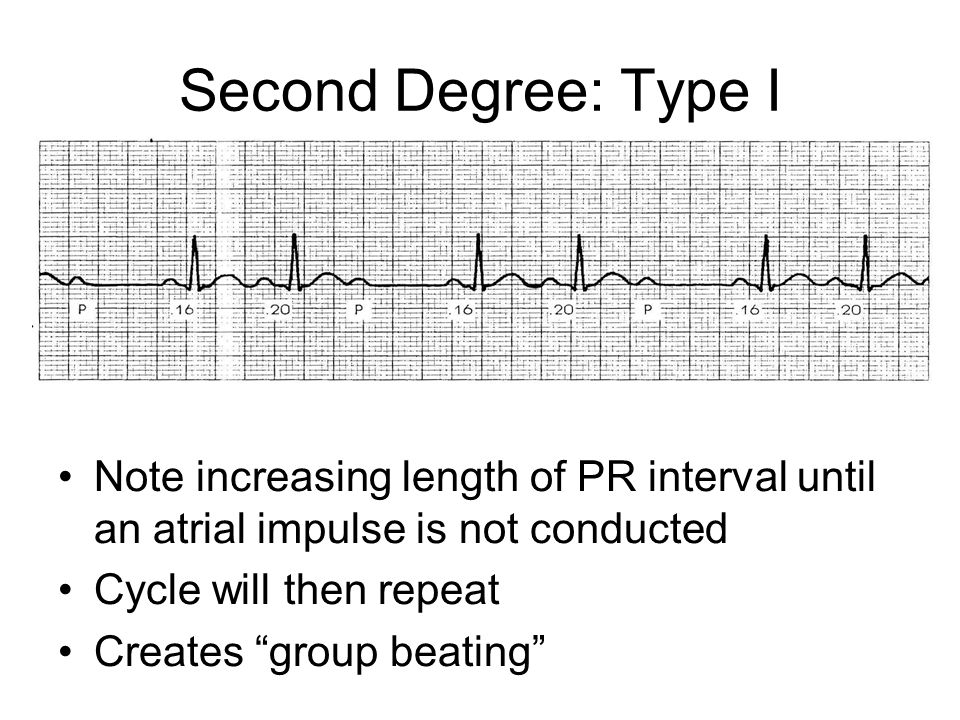 Second Degree: Type I Note increasing length of PR interval until an atrial impulse is not conducted.