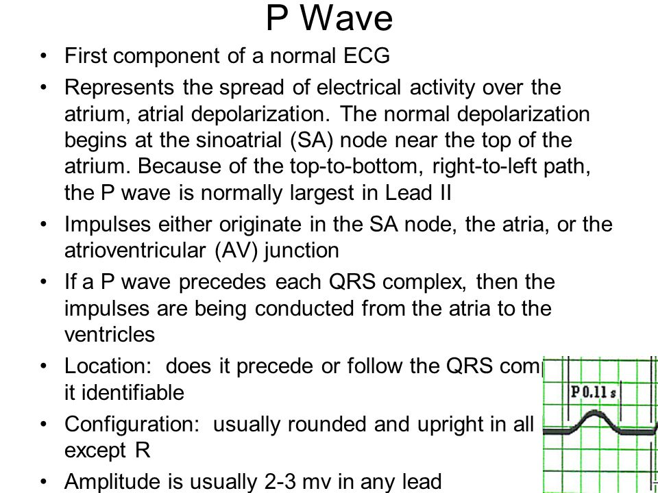 P Wave First component of a normal ECG