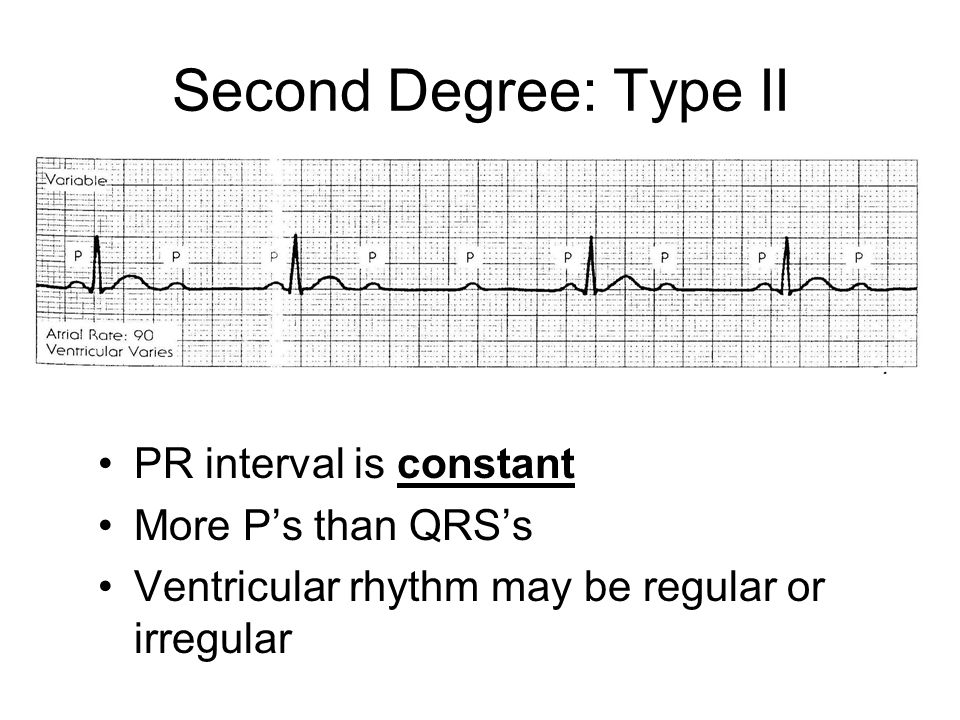 Second Degree: Type II PR interval is constant More P's than QRS's