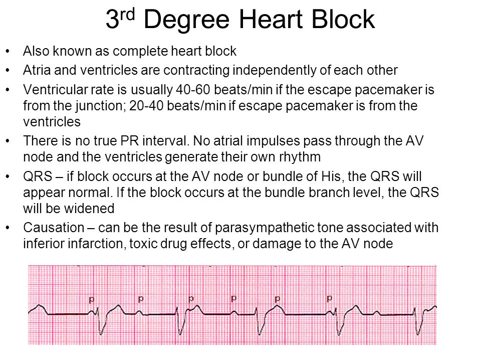 3rd Degree Heart Block Also known as complete heart block