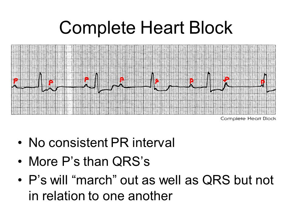 Complete Heart Block No consistent PR interval More P's than QRS's