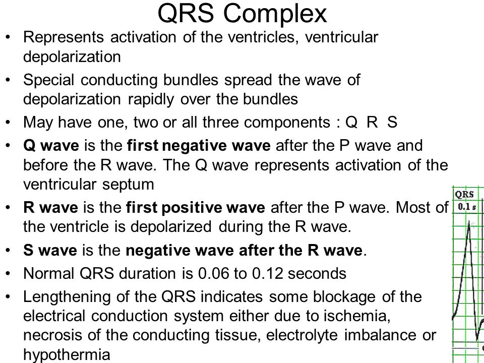 QRS Complex Represents activation of the ventricles, ventricular depolarization.