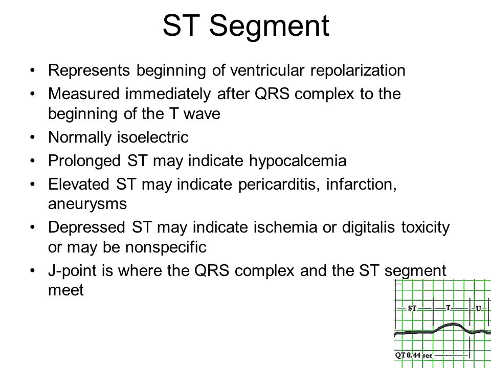 ST Segment Represents beginning of ventricular repolarization