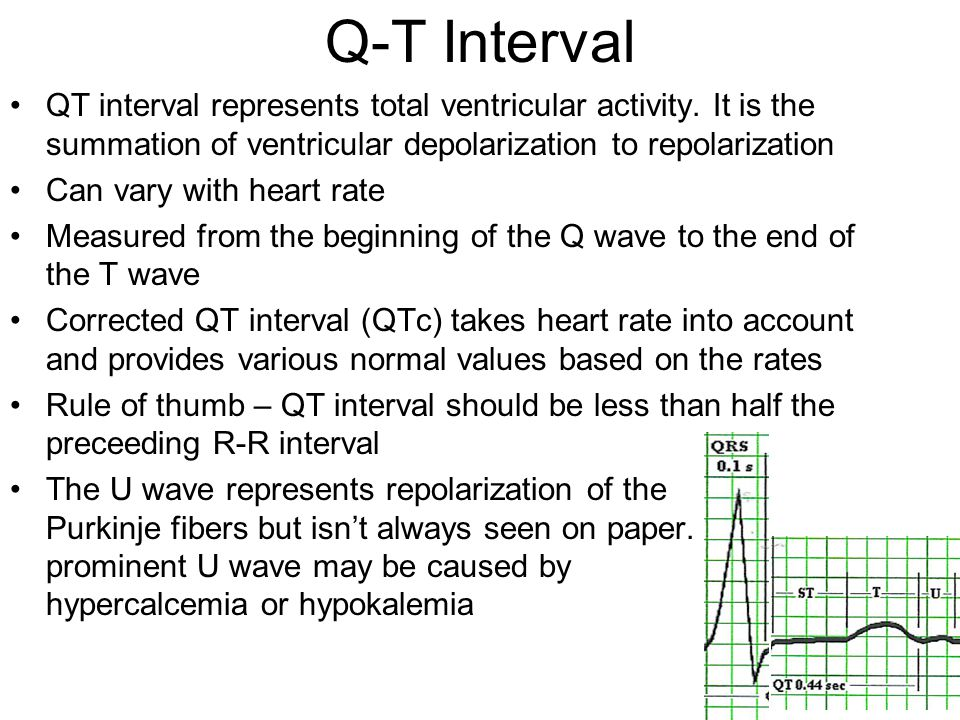 Q-T Interval QT interval represents total ventricular activity. It is the summation of ventricular depolarization to repolarization.