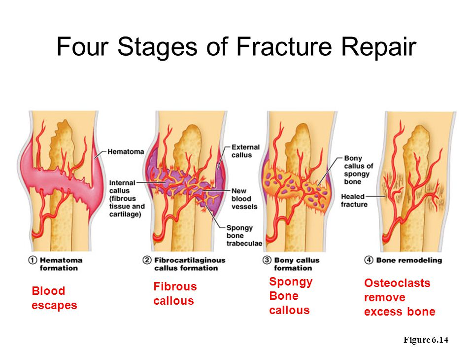 Stages of Healing a Fracture