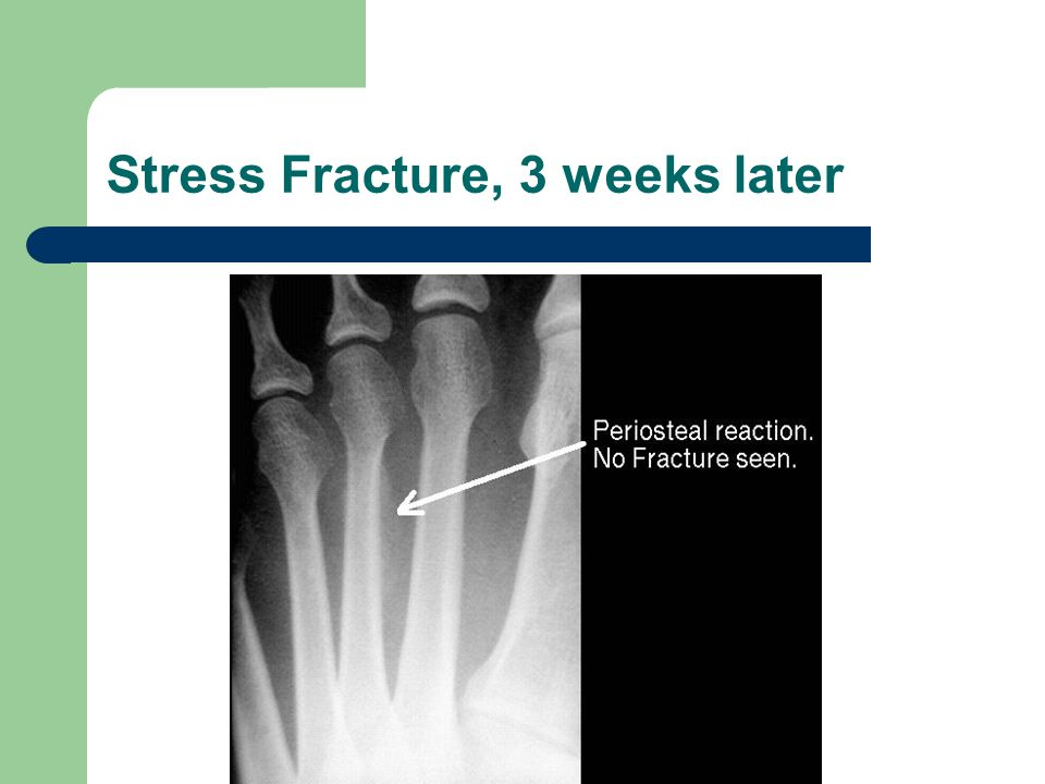 Stress Fracture, 3 weeks later