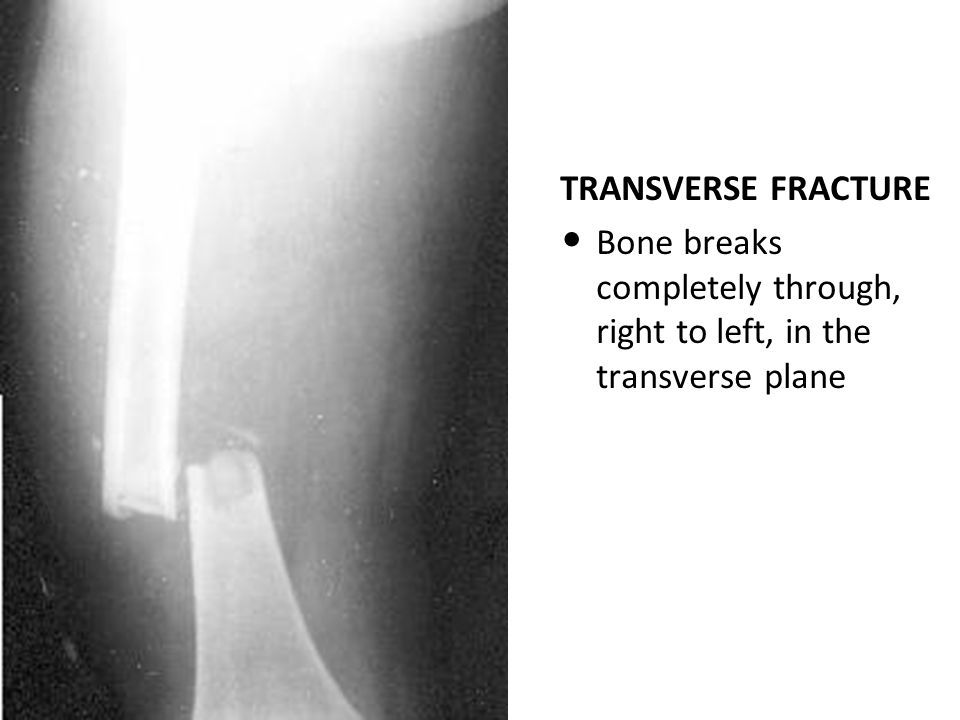 TRANSVERSE FRACTURE Bone breaks completely through, right to left, in the transverse plane