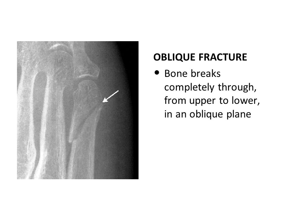 OBLIQUE FRACTURE Bone breaks completely through, from upper to lower, in an oblique plane