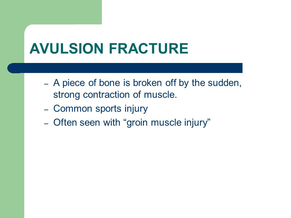 AVULSION FRACTURE A piece of bone is broken off by the sudden, strong contraction of muscle. Common sports injury.