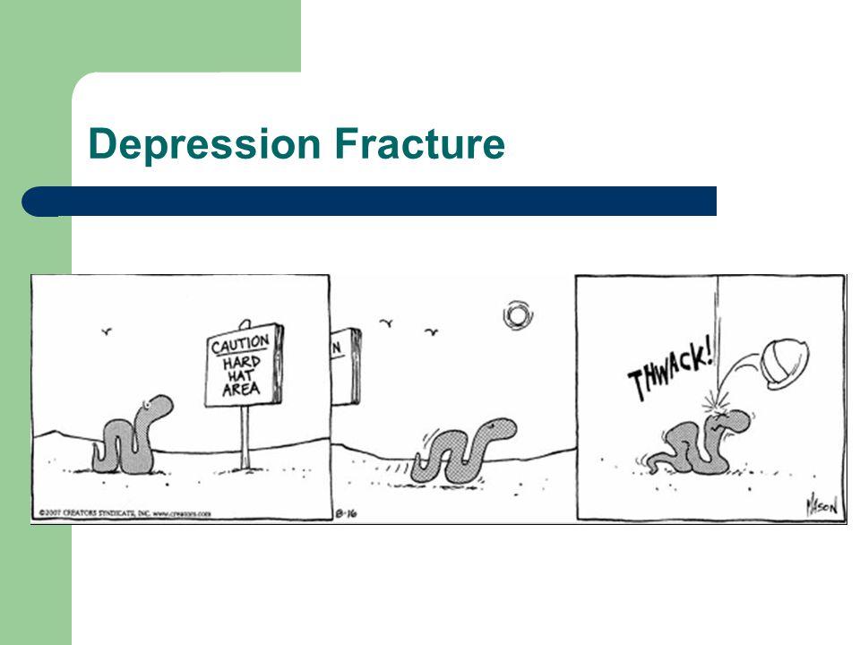 Depression Fracture