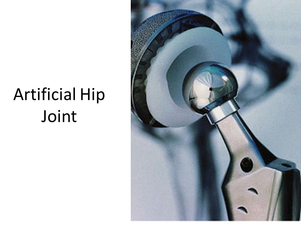 Artificial Hip Joint