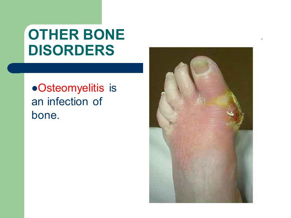 OTHER BONE DISORDERS Osteomyelitis is an infection of bone.