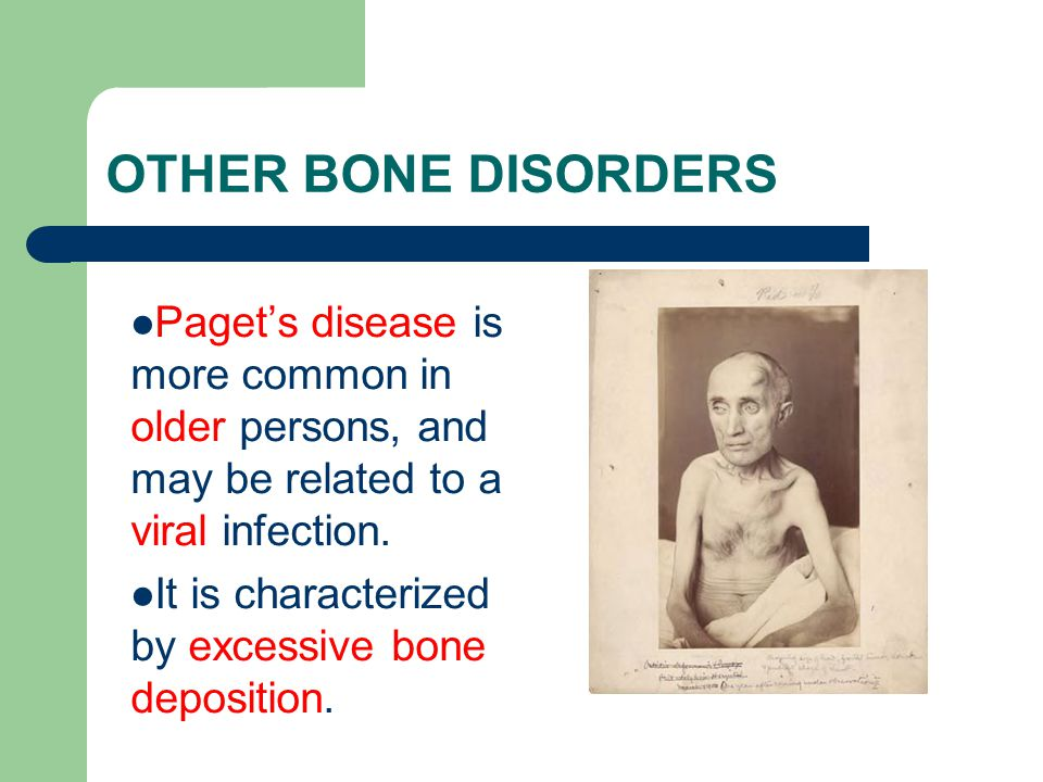 OTHER BONE DISORDERS Paget's disease is more common in older persons, and may be related to a viral infection.