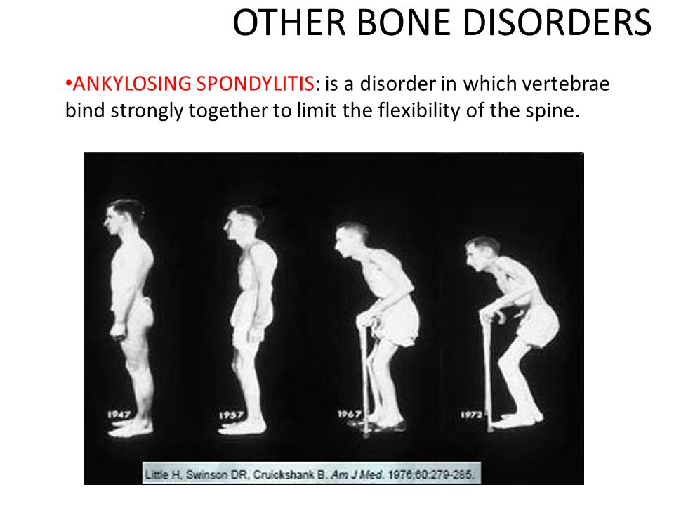 OTHER BONE DISORDERS ANKYLOSING SPONDYLITIS: is a disorder in which vertebrae bind strongly together to limit the flexibility of the spine.