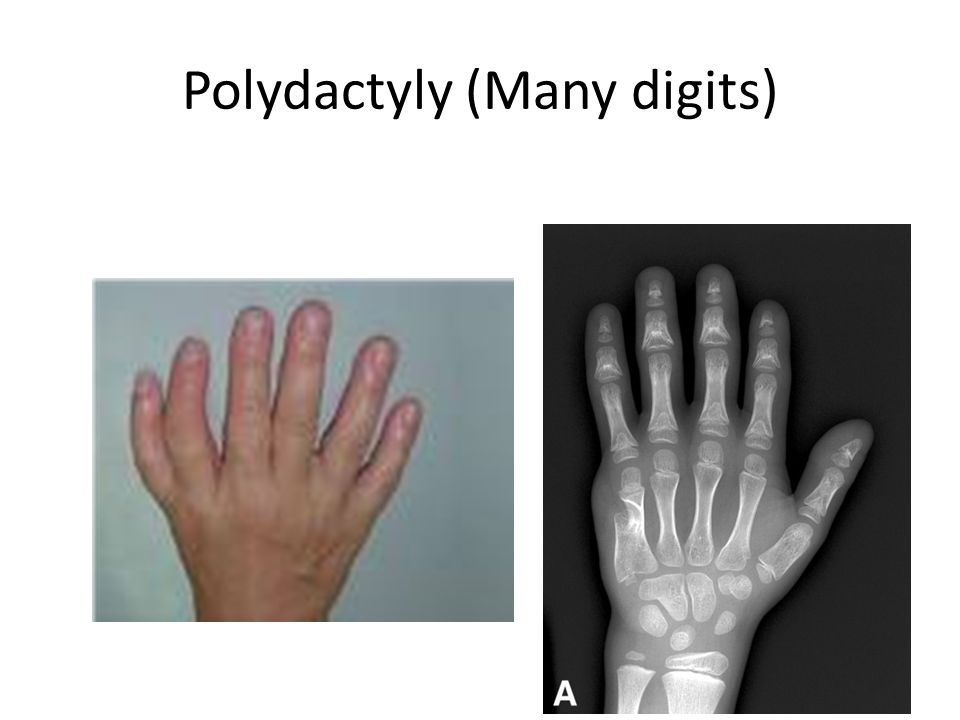 Polydactyly (Many digits)