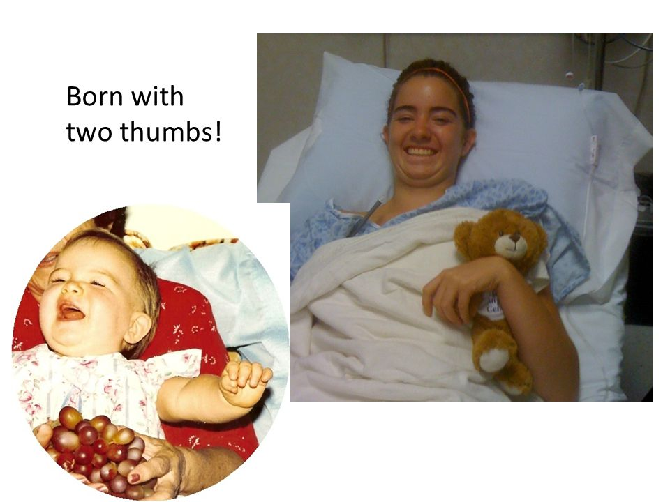 Born with two thumbs!