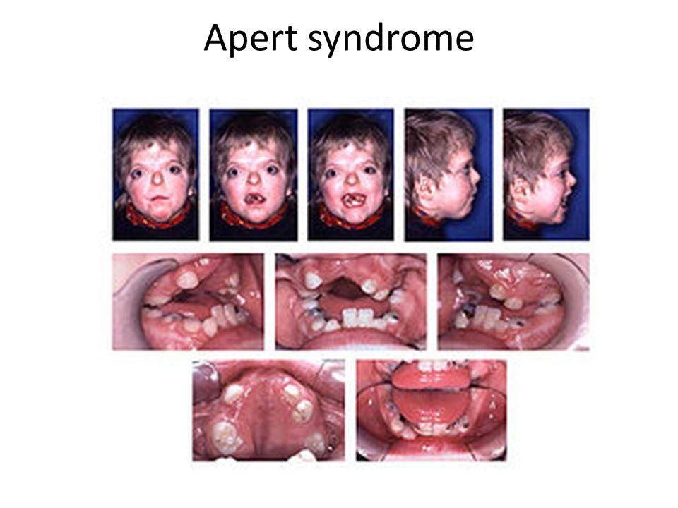 Apert syndrome