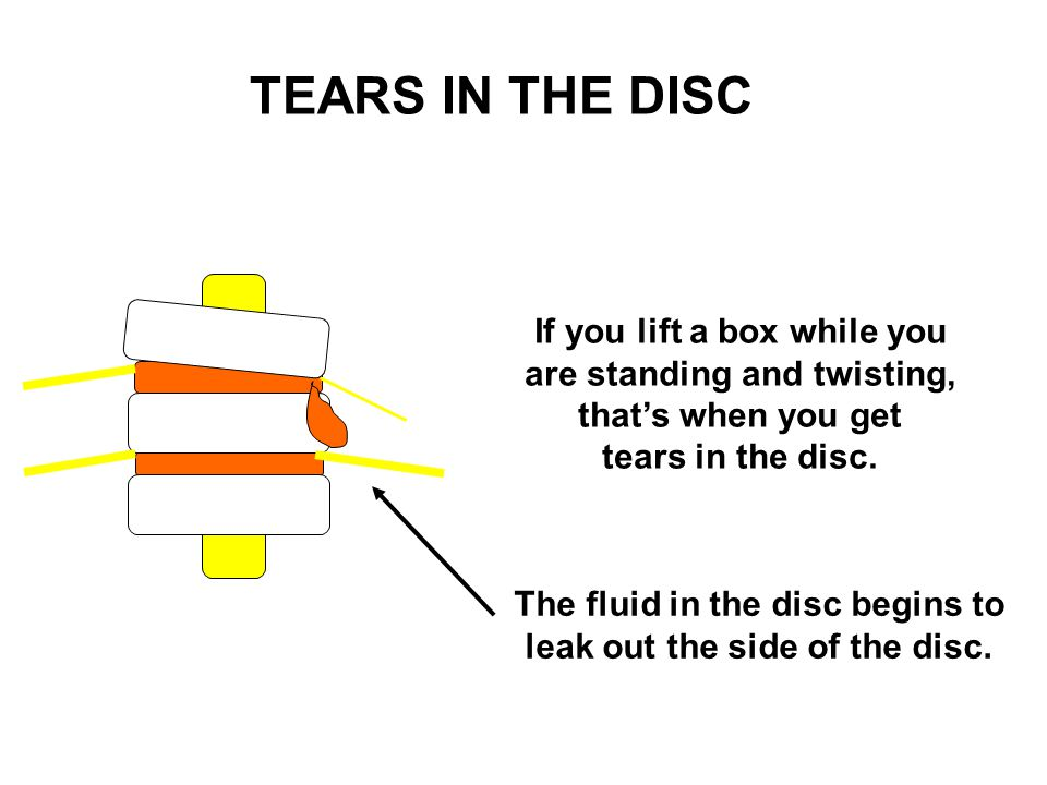 TEARS IN THE DISC If you lift a box while you are standing and twisting, that's when you get. tears in the disc.