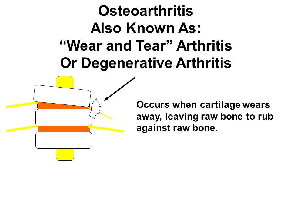 Wear and Tear Arthritis Or Degenerative Arthritis
