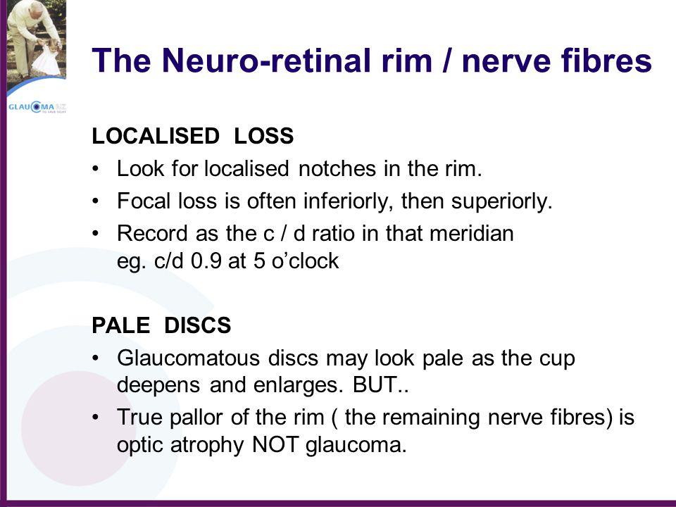 The Neuro-retinal rim / nerve fibres