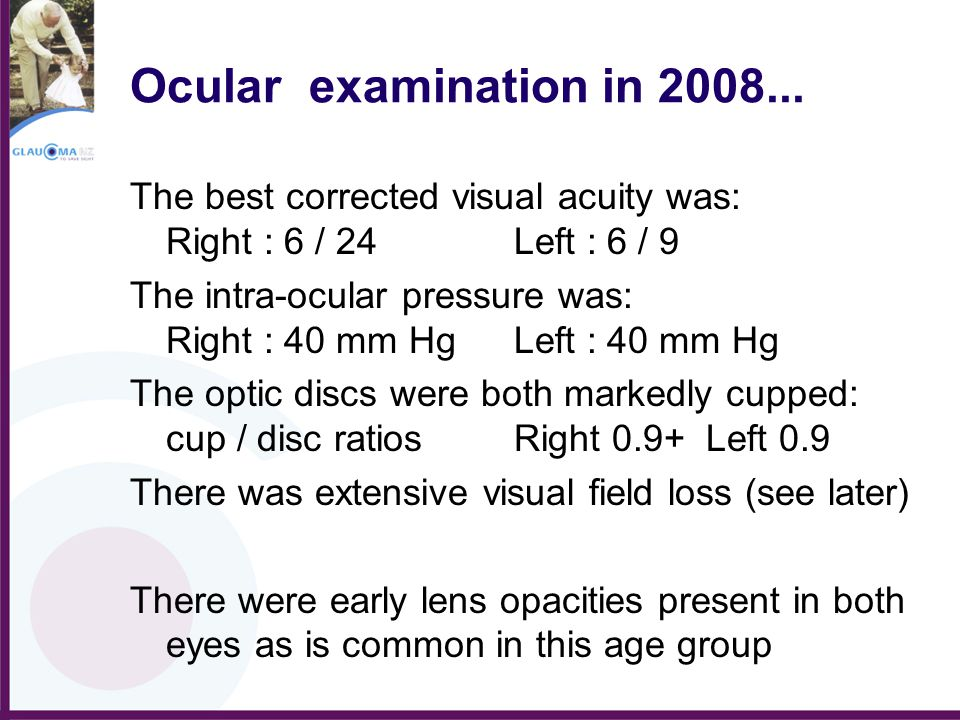 Ocular examination in 2008... The best corrected visual acuity was: Right : 6 / 24 Left : 6 / 9.
