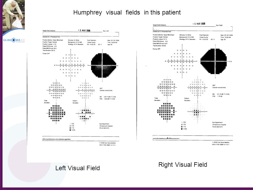 Humphrey visual fields in this patient