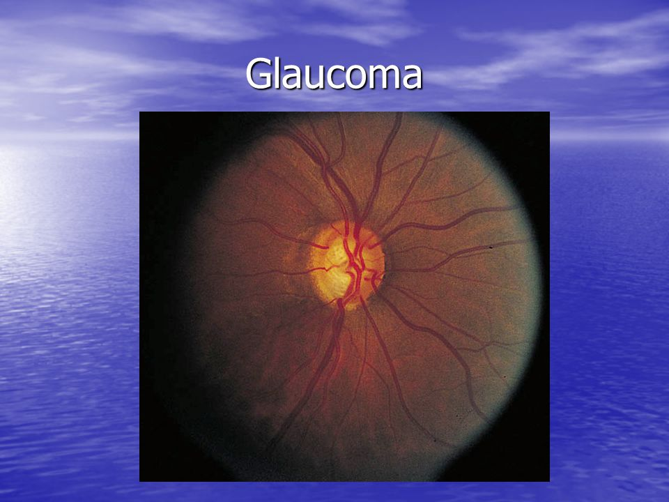 Glaucoma Refer when IOP greater than 22 mm Hg by Schiotz tonometry