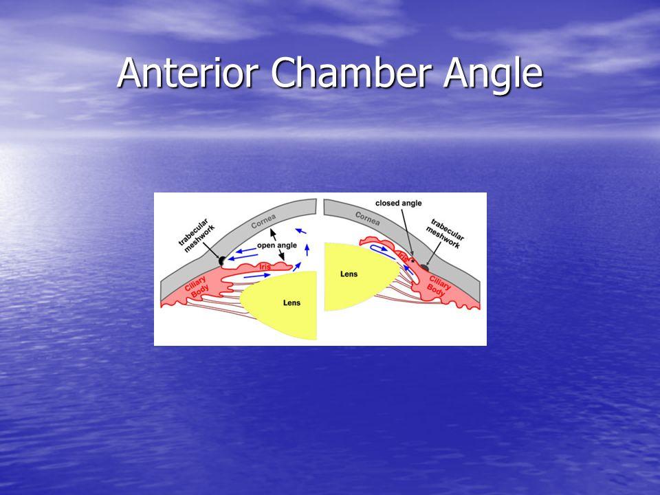 Anterior Chamber Angle