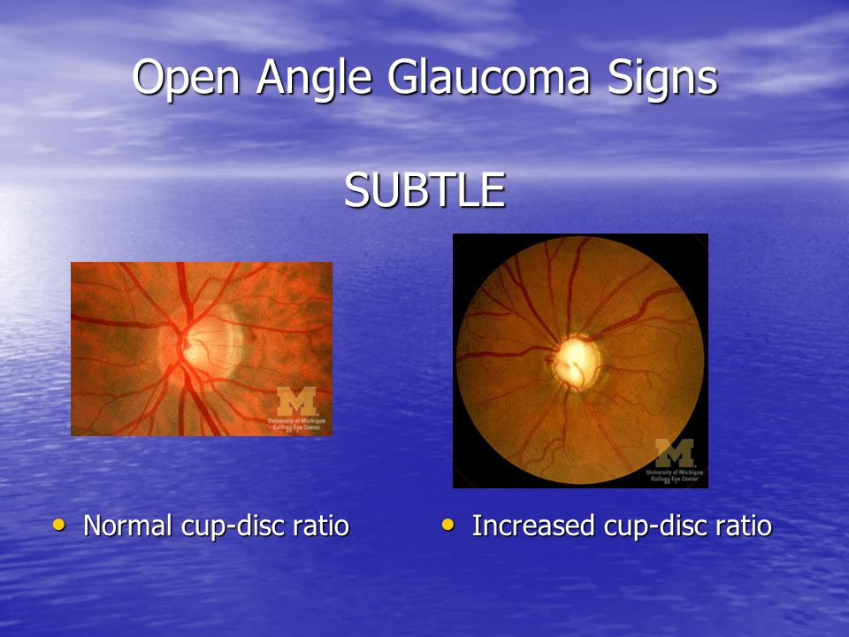 Open Angle Glaucoma Signs SUBTLE
