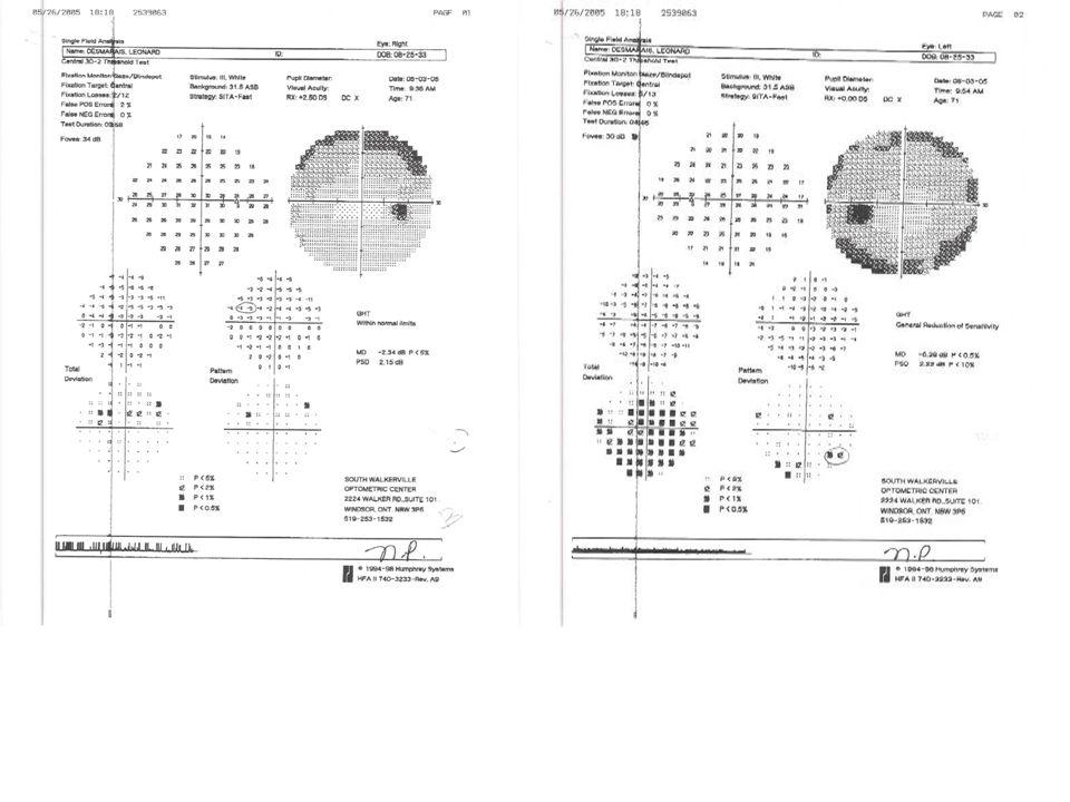 Case 3: Visual Field