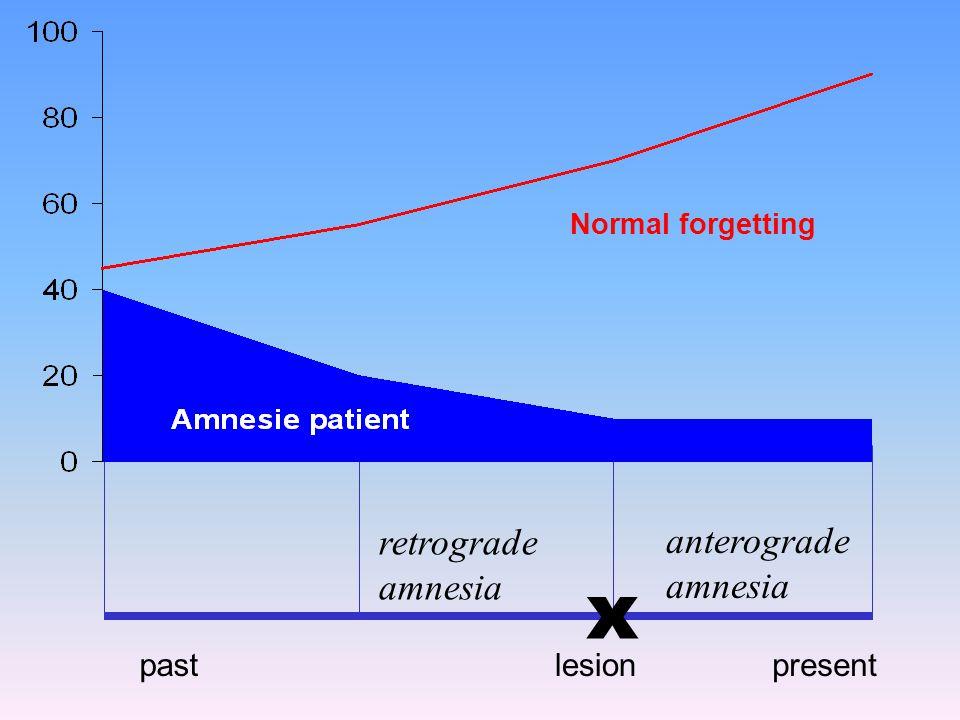 x retrograde anterograde amnesia amnesia past lesion present