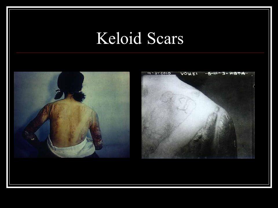 Keloid Scars
