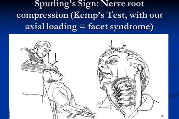 Spurling's Sign: Nerve root compression (Kemp's Test, with out axial loading = facet syndrome)