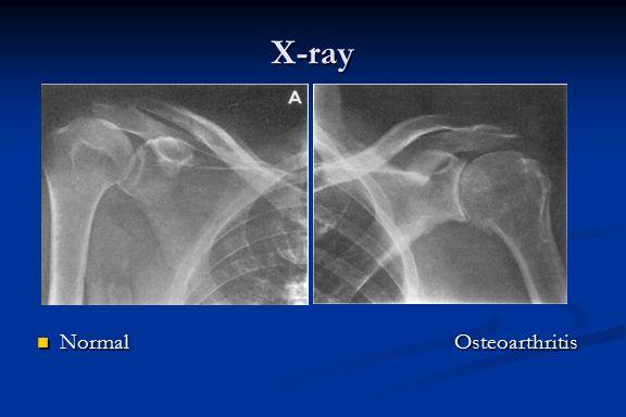 X-ray Normal Osteoarthritis