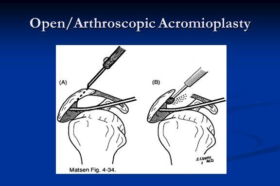 Open/Arthroscopic Acromioplasty