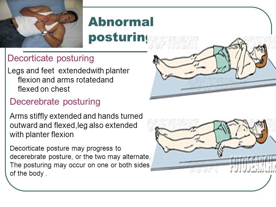 Abnormal posturing Decorticate posturing Decerebrate posturing